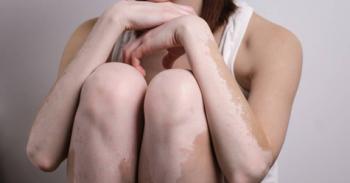 Vitiligo – Você sabe o que é e como tratar?