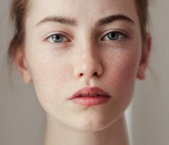 Tipo de pele: Saiba como identificar o seu.