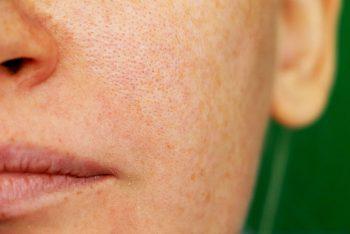 Melasma: o que é e como tratar