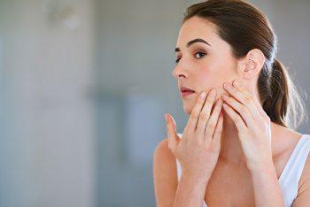 Espinhas depois dos 25 anos? Como resolver a acne adulta
